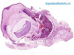 Digi Scan pathology provides best histology digital slides