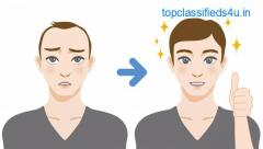 Cost factors of Hair Transplant in Bhubaneswar