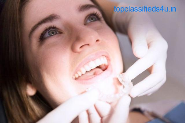 Aligners in Orthodontics-Eazyalign