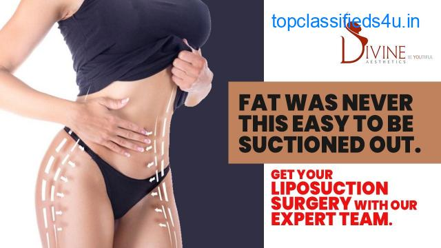 Don't Lose Your Hope If You Have Excess Fat